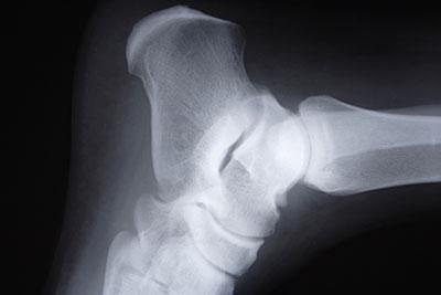 Radiografia del tarso del cane