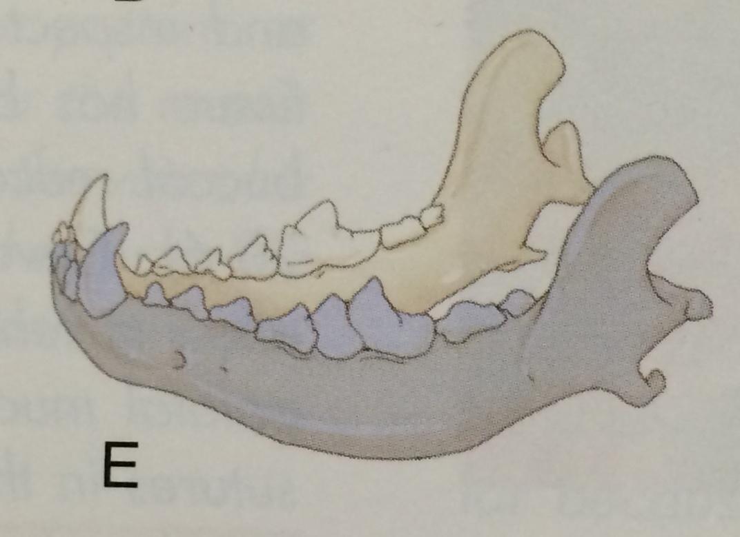 Emimandibolectomia